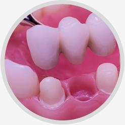 Broken/Loose Tooth Crown Repair