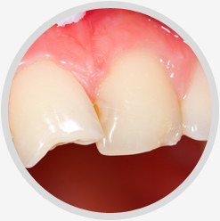 Broken Teeth Restoration Treatment