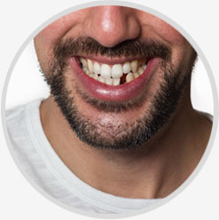 Lost Tooth Fillings & Loose Cap Repair