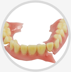 Broken Denture Tooth Repair